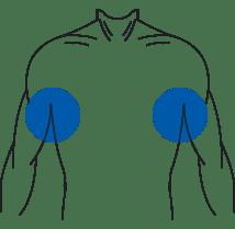 position des bras pour la prise de mesure avec accuniq
